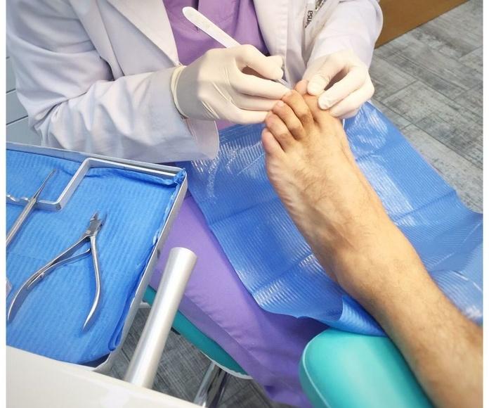 Tratamiento quiropodológico: Tratamientos de Gema Martínez