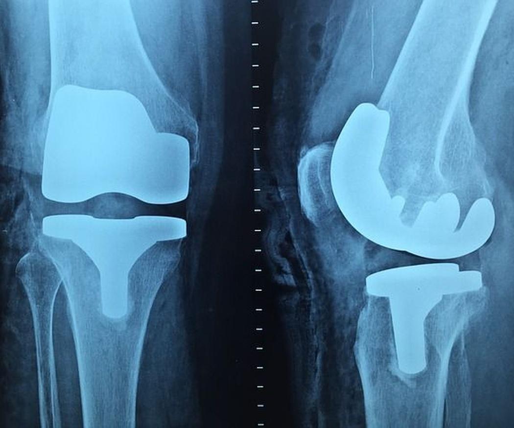 Breve historia de la ortopedia