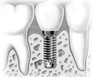 Todos los productos y servicios de Dentistas: Manuel Varela Porto