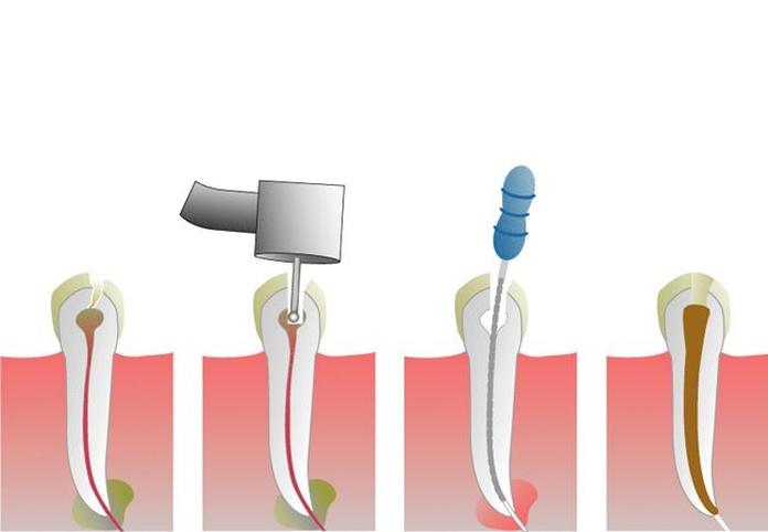 Endodoncia: Especialidades de Family Dent Coruña