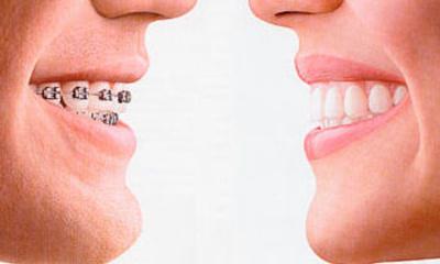 Todos los productos y servicios de Ortodoncia: Clínica Ortodoncia María Dolores Olaizola