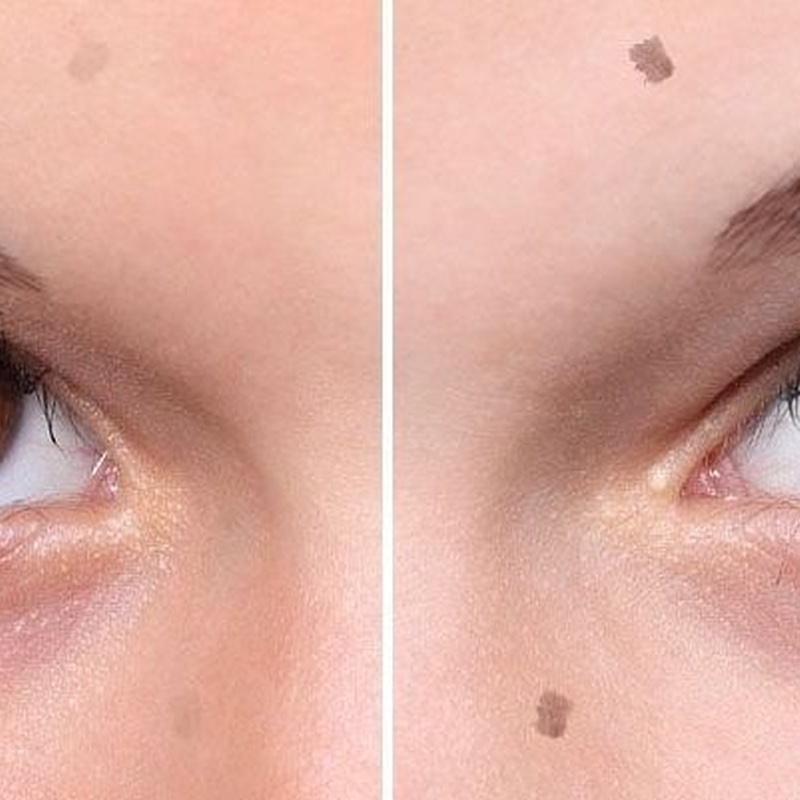 Micropigmentación pecas y lunares: Servicios de C. López