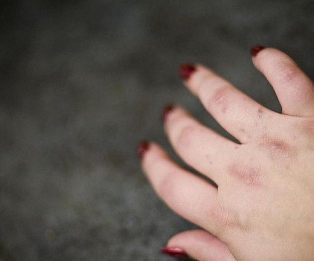 La dermatitis atópica