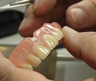 Prótesis dental fija cerámica sin metal