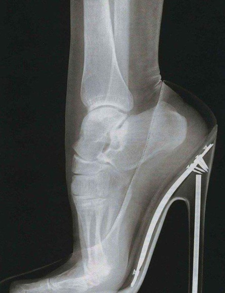 Radiografia de pie con tacón alto