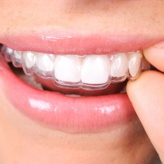 Descubre todas las ventajas de la ortodoncia invisible Invisalign