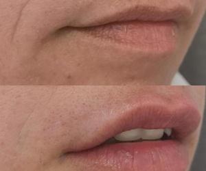 Relleno de labios y surco nasogeniano realizado por el Doctor Jorge Blanco