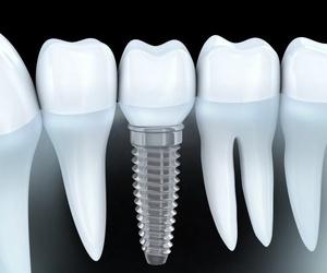 ¿Por qué es necesario utilizar implantes dentales?