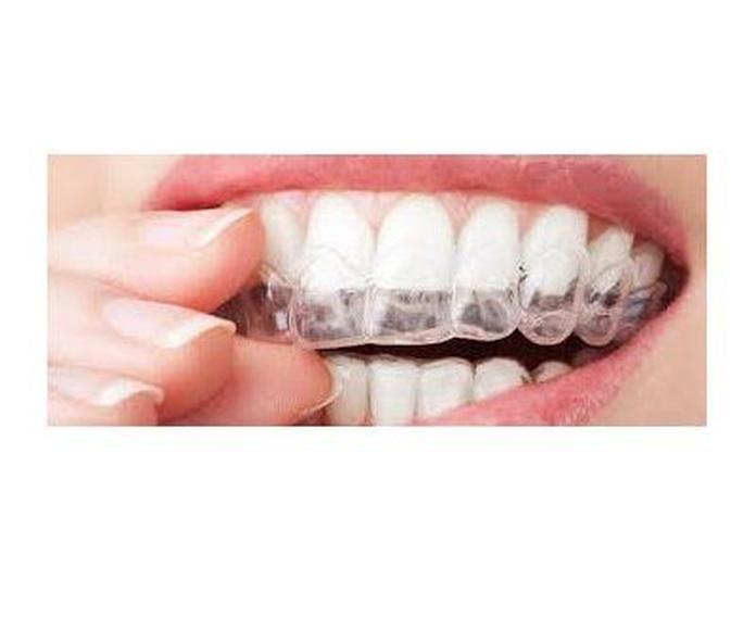 Blanqueamiento: Tratamientos de Hospital Dental de Madrid. Clínicas en San Blas y Alcorcón