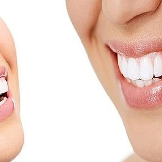 Una buena salud con dientes sanos