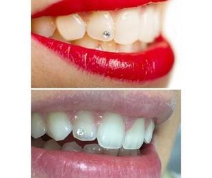 Joya dental