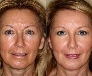 ¿En que consiste la radiofrecuencia facial?