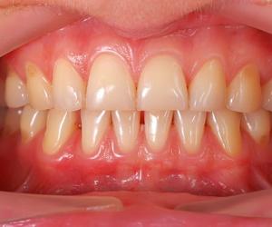 Tratamientos preventivos de odontología