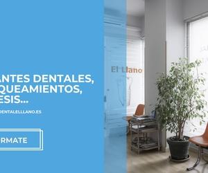 Aparatos dentales Gijón