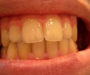 La prótesis dental fija y prótesis dental móvil: pros y contras