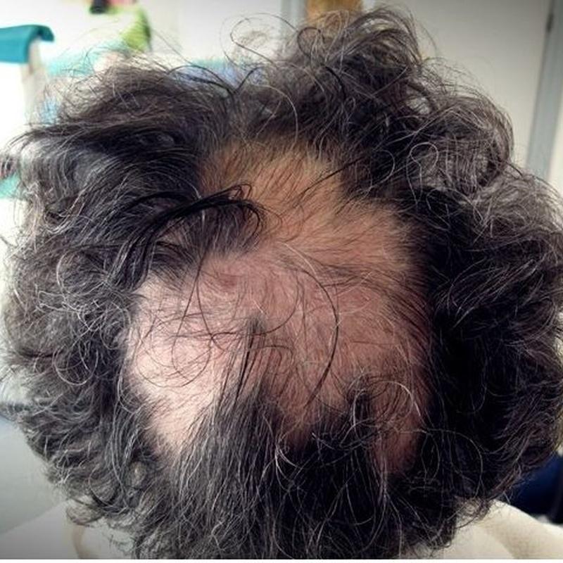 Tratamientos antes y después: Servicios de Dermocap