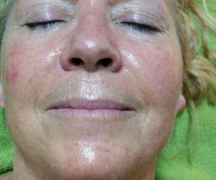 LPG Facial: Peluquería y estética de Belleza Integral 10