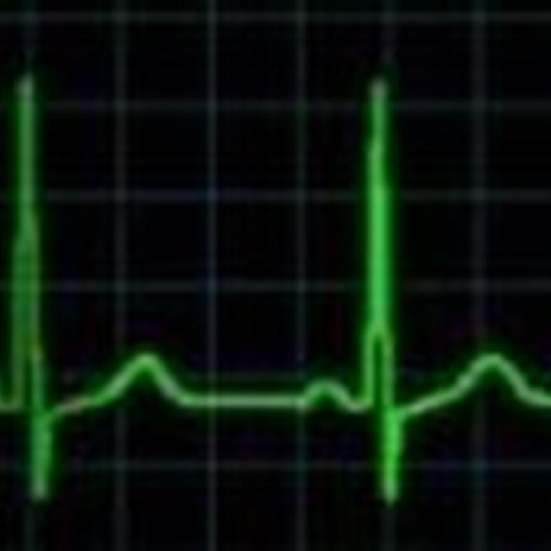 Electrocardiograma: Productos y servicios de Veterinario El Puertito