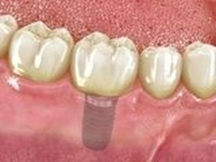 Implantes dentales: Tratamientos de Clínica Dental Drs. Canga