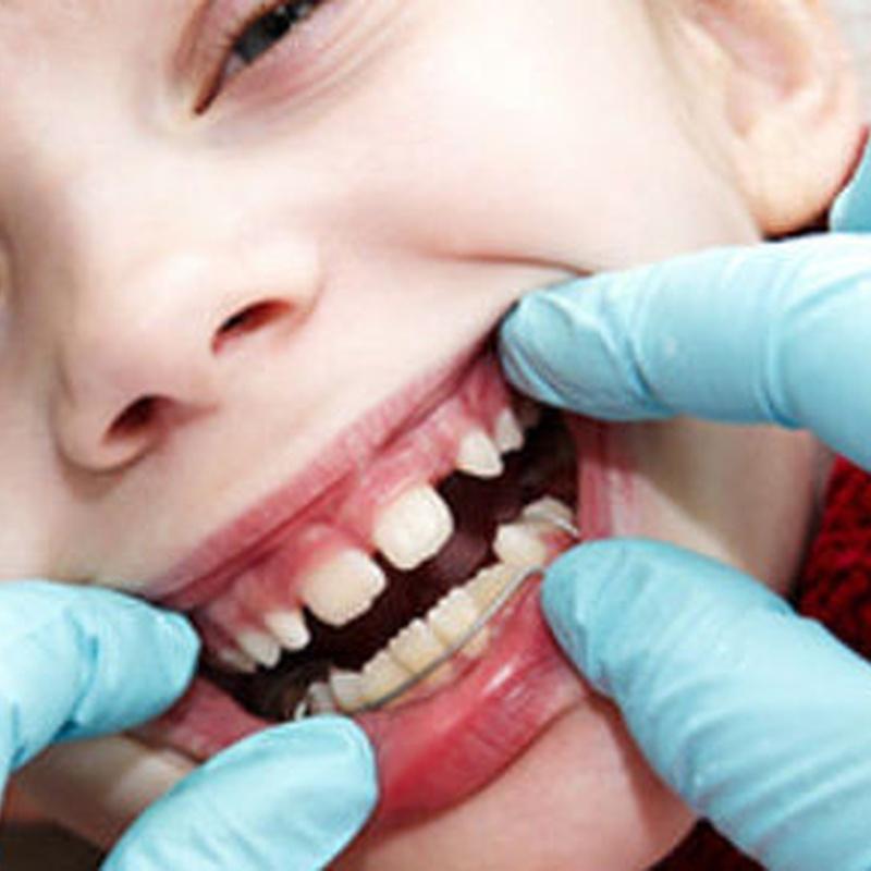 Odontología infantil: Tratamientos de Clínica Dents