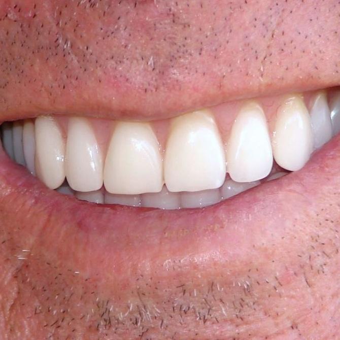 Blanqueamiento dental, qué debes saber