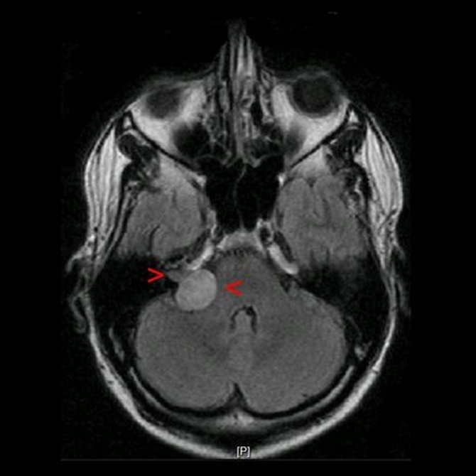 Soluciones para el neurinoma del acústico