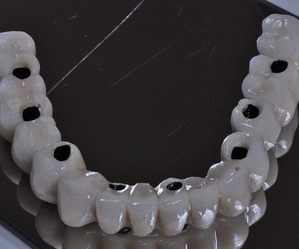 ¿Sabes en qué consisten los implantes dentales?