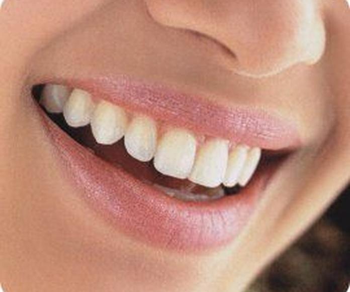 Blanqueamiento dental: Catálogo de Clínica Dental Elena Jiménez Jiménez