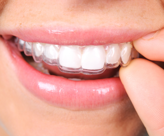 Ortodoncia removible o funcional: Especialidades  de Clínica Dental Baviera