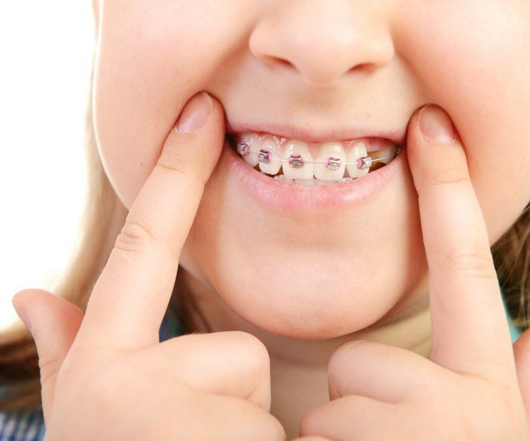 ¿Hay una edad recomendada para colocar un aparato dental en un niño?