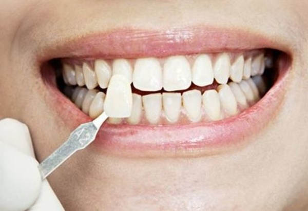 Estética dental: Catálogo de Clinica Dental Zamalloa