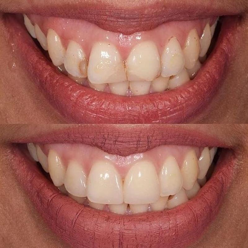 Carillas de composite: Servicios de Clínica dental ulident