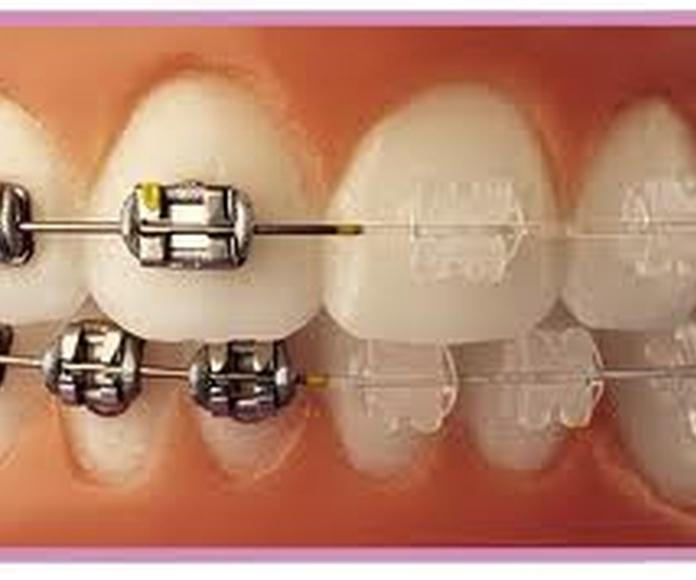 Ortodoncia clásica: Especialidades de Clínica Dental Medicalia Fuenlabrada, tus dentistas de confianza