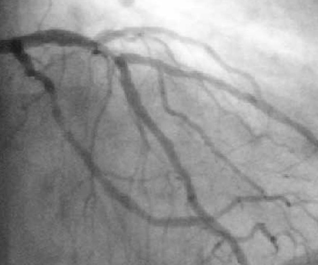 ¿Para qué se hace una angiografía?