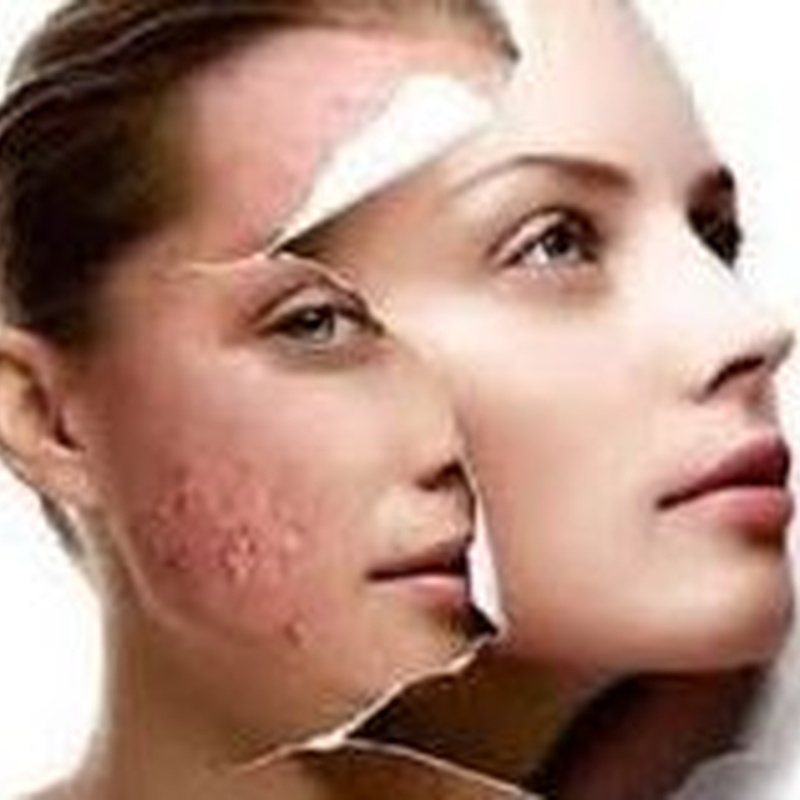Peeling químico: Tratamientos y cosméticos de Etherma