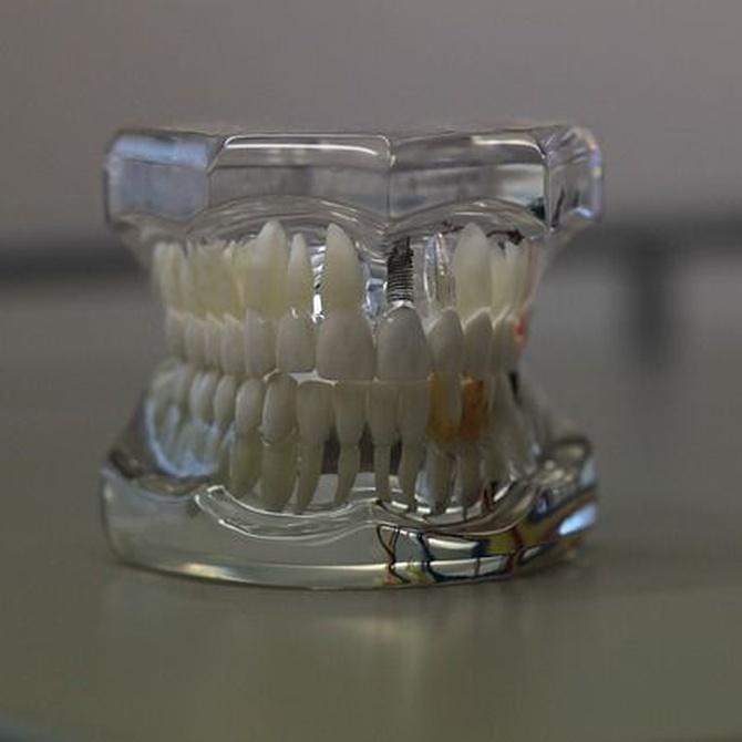 Tipos de prótesis dentales removibles y sus ventajas