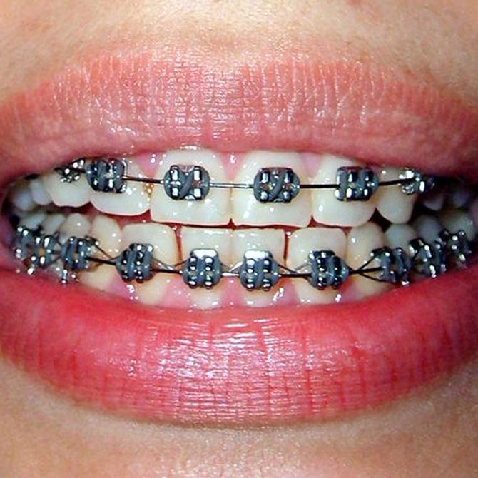 Cómo lavarse los dientes si tenemos ortodoncia