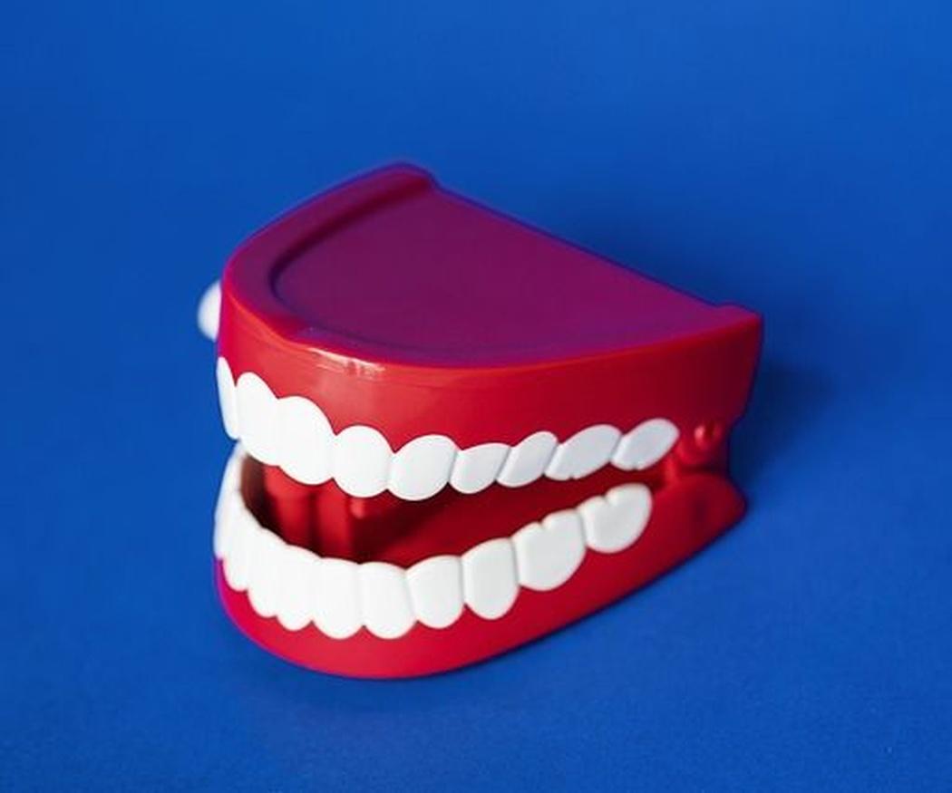 Los implantes dentales frente a las prótesis movibles