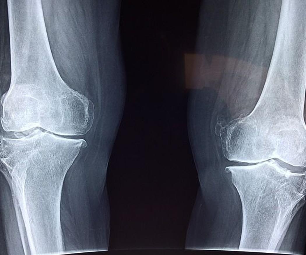 ¿En qué consiste la ortopedia deportiva?