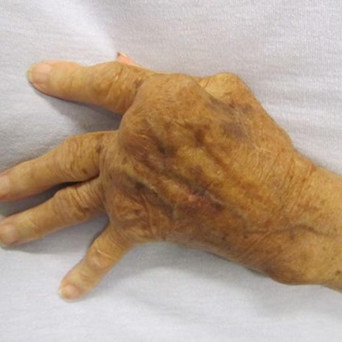 ¿Qué dolores y molestias tiene una persona con artritis?