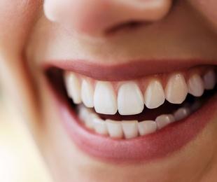 Blanqueamiento dentario