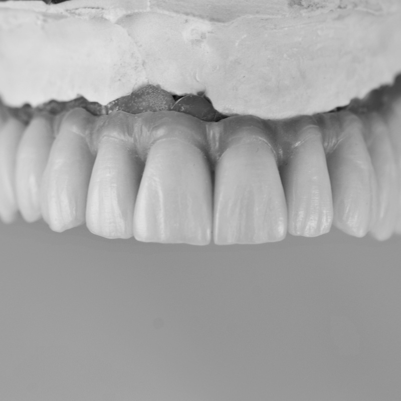 Prótesis fija: Productos y servicios de Tecnolab Dental Galicia