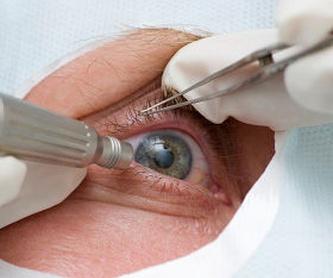 Cirugía Refractiva: Tratamientos de Consulta Roberto Conde Seoane