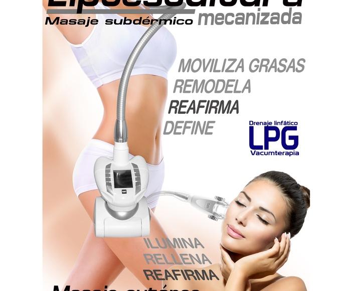 LPG: Servicios de Ioana Centro de Estética