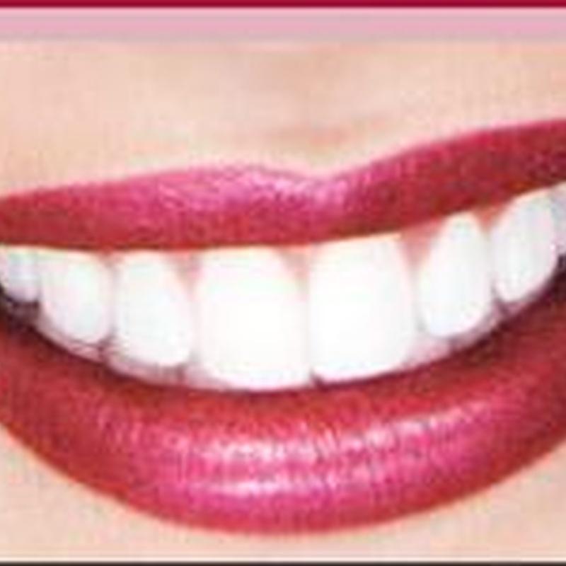Estética dental: Servicios de Clínica Dental Safident