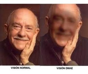 Degeneración macular asociada a la edad DMAE