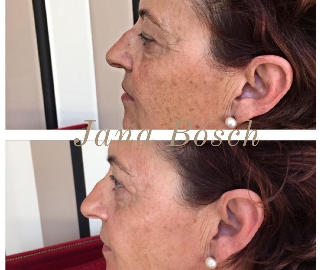 Cómo evitar las manchas en la piel de la cara (I)