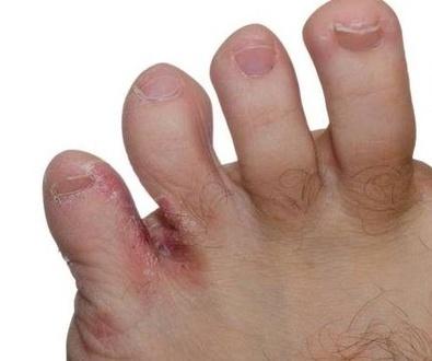 Afecciones de los pies