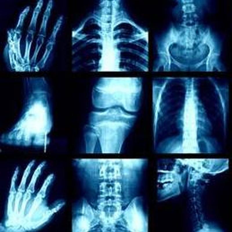 ESPECIALIDADES: Especialidades de Radiología Arlanzón
