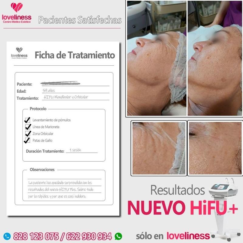 HIFU (Lifting facial sin cirugía): Tratamientos de estética de Clínica Estética Loveliness